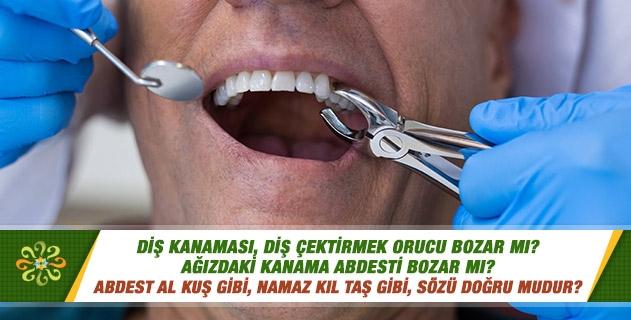 Diş kanaması, diş çektirmek orucu bozar mı? Ağızdaki kanama abdesti bozar mı? Abdest al kuş gibi, namaz kıl taş gibi, sözü doğru mudur?
